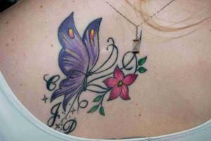Novo LASER Revlite para Remoção de tatuagens pretas e multicoloridas
